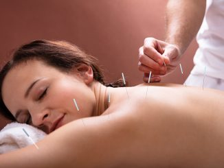 Woman getting an acupuncture and IVF service